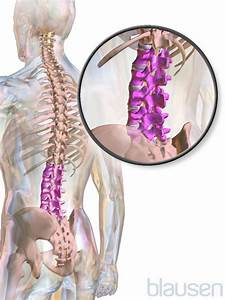 Low Back Pain - Bone  Joint  And Muscle Disorders