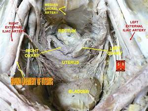 The gallery for --> Round Ligament Of Uterus
