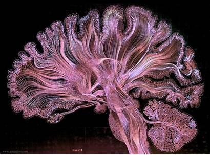 Brain Complex Human Marvelous Structure Kottke Visualizations