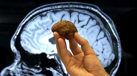 cuisine d馭inition pourquoi notre cerveau a une forme de noix de spaghettis ou de flamby