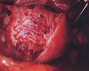 ... - Causes Symptoms and Treatment Pictures - Diseases Pictures Uterine Diseases