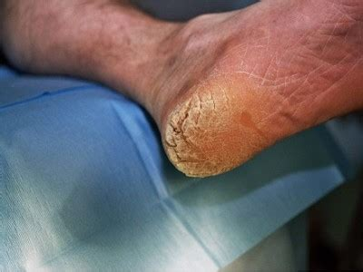 Hyperkeratosis Frambesia  Causes, Symptoms And Treatment. Social Phobia Signs. Eal Signs. Animation Signs. Ros Signs. Soles Signs. Sprinkler Signs Of Stroke. Lung Atelectasis Signs. Mellitus Signs