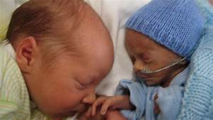 Image Gallery identical twins at 24 weeks