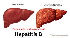 hepatitis b is a serious liver infection caused by the hepatitis b ... Hepatitis