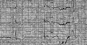 Dr  Smith U0026 39 S Ecg Blog  Emergency Transvenous Cardiac Pacing