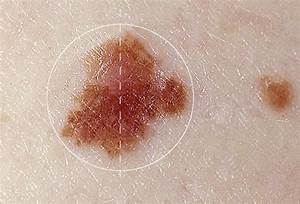 Skin Cancer Moles | Skin Cancer Mole | Mole Skin Cancer ...