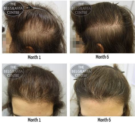 Hair Loss and Thyroid Disorder ** Click image to review