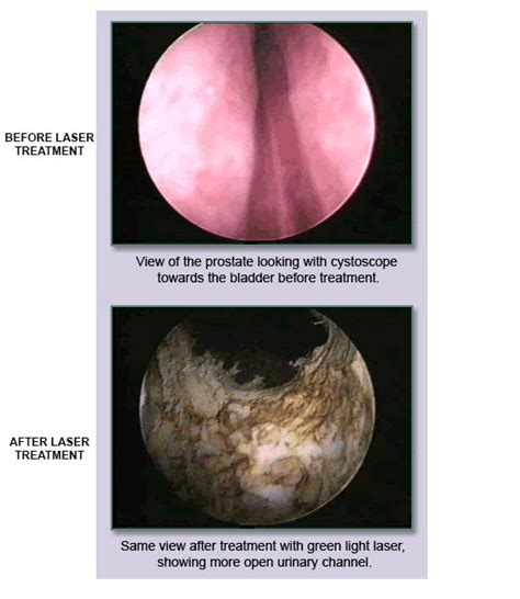 green light laser prostate surgery video green light laser prostate iron blog