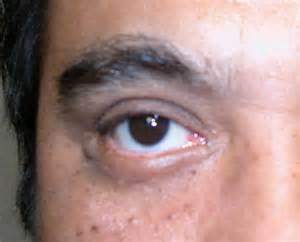 Eyelid Cancer, cancer, eyelid, melanoma Eye Cancer