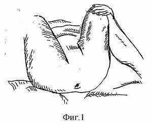 Варикозное расширение вен малого таза и геморрой