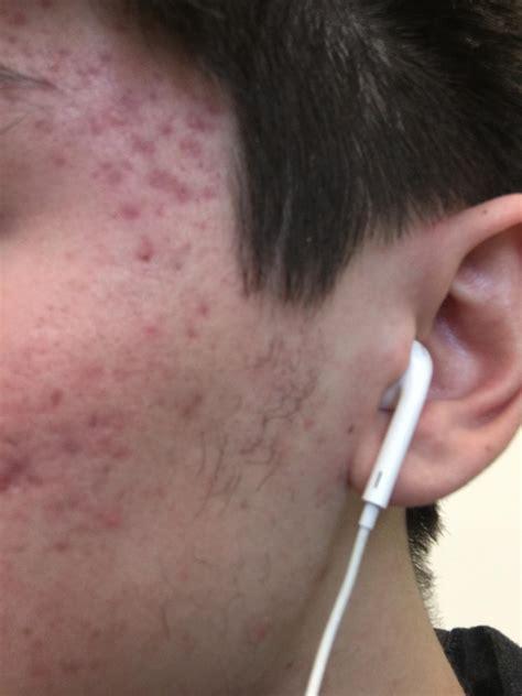 [acne] dermarolling and acne scars? : SkincareAddiction