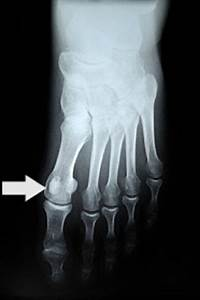 Common Reasons For Pain In The Big Toe Joint