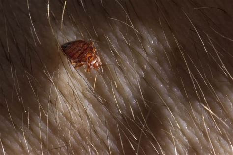 bed bugs  lice  hair     difference