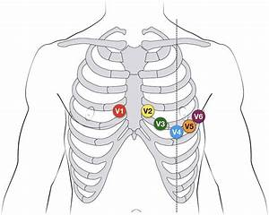 15 Lead Ekg Placement Diagram