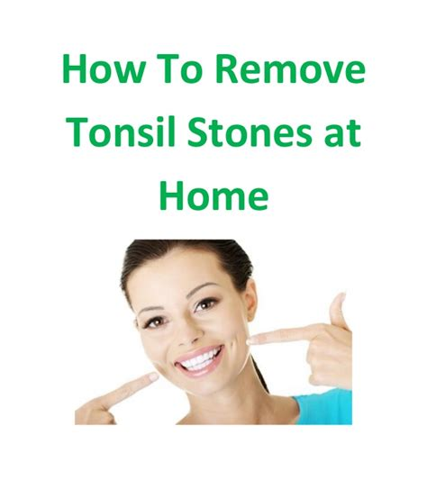 removing tonsil stones at home how to remove tonsil stones at home 34703