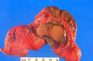 Sclerosing Encapsulating Peritonitis