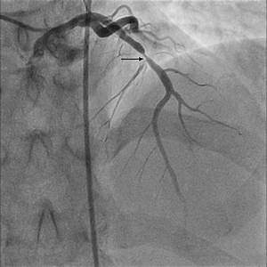 U201cthe Unpredictable Absorb U201d  U2013 Very Late Stent Thrombosis Of