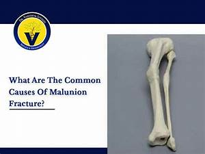 What Are The Common Causes Of Malunion Fracture