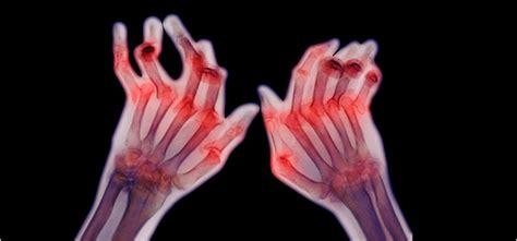 obat tradisional alami  sakit penyakit rematik