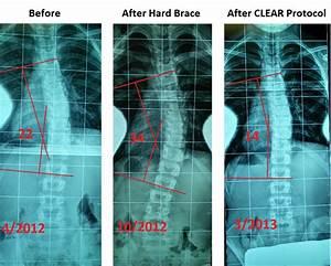 Denver Scoliosis Treatment