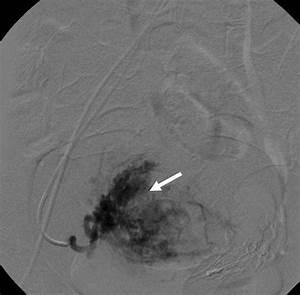 Uterine Artery Embolization In Residual Arterio