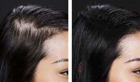 Reviews For Best Hair Loss + Regrowth Growth Products For