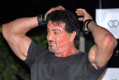 Sylvester Stallone Had A Hair Transplant