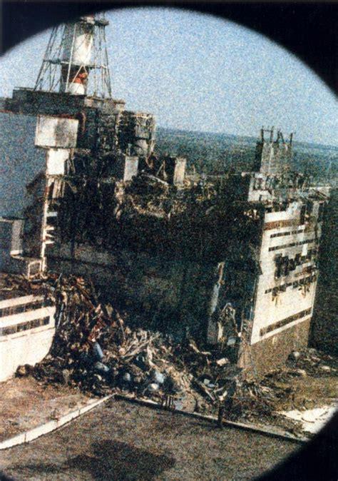 Лучевая болезнь. Фото людей и последствия аварии на ЧАЭС . Панорамы Чернобыля. Виртуальные прогулки по Чернобылю