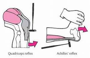 The gallery for --> Quadriceps Reflex