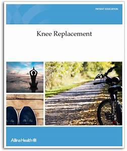 Knee Replacement Manual Available In Print