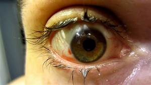 My Eye The Day After Lasik Vision Correction Surgery