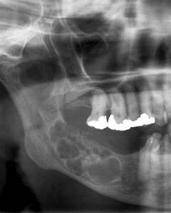 Radiology Picture of the Day » Archives » Ameloblastoma
