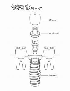 Dental Implant Explosion Diagram On Behance