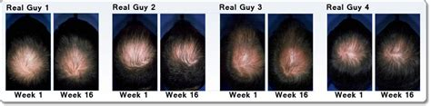 Minoxidil Shedding Phase Pictures by Rogaine For Hair Regrowth Treatment 5