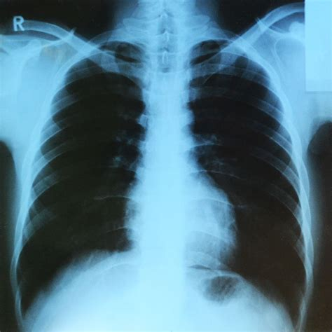 treatment  asbestos lung cancer asbestos meaning