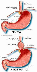 Medical Definition Of Hiatal Hernia