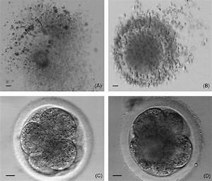 Oocytes Recovered By Ovum Pick
