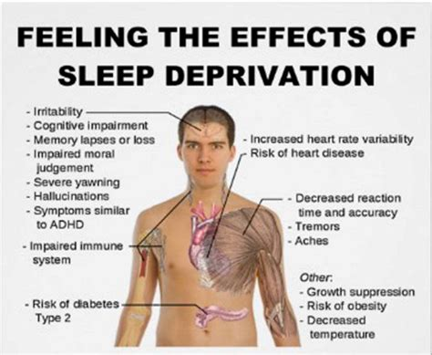 Lack Of Sex Meme - 10 surprising effects of lack of sleep my honeys place