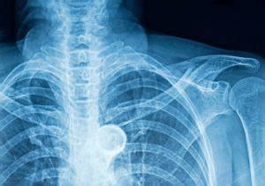 bruised ribs symptoms   natural remedies