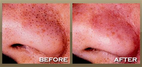 Skinnpeccable  Microdermabrasion  Los Angeles