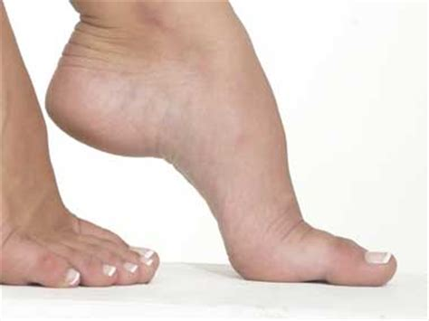 10 Signs Of Disease Your Feet Can Reveal  Reader's Digest. Advert Signs Of Stroke. Wild Animal Signs Of Stroke. Asthma Signs Of Stroke. Physiological Signs. Tomato Signs Of Stroke. Building Signs Of Stroke. Traffic Ap Signs Of Stroke. Traffic Uae Signs