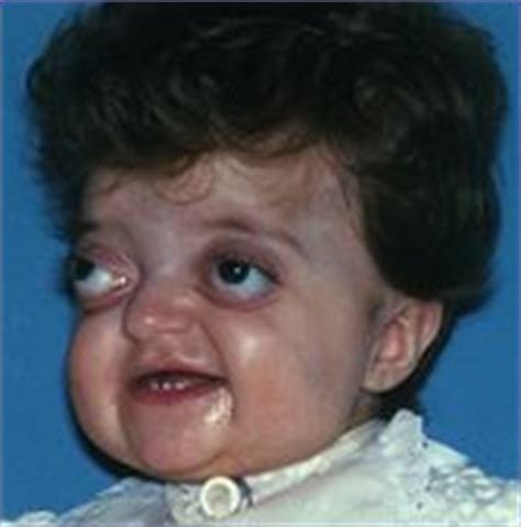 Information About Pfeiffer Syndrome Yousense Info