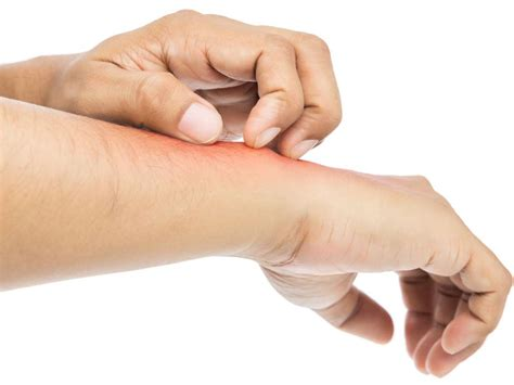 Probiotics For Eczema Why Use Them And Do They Work