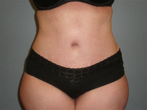 Tummy Tuck Patient 35 Heather Rocheford Md