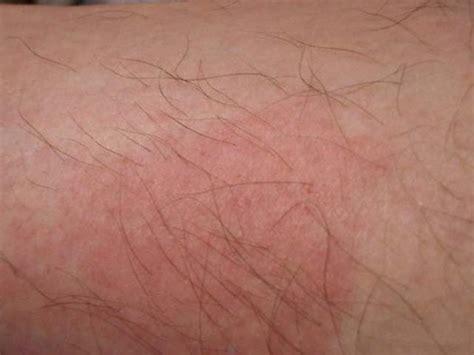 Bed Bugs Symptoms Mattresses