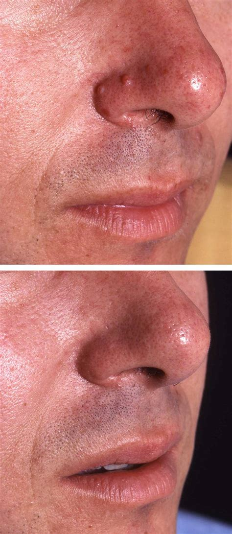 Mole Removal Treatment Before & Afters | Áda Aesthetic