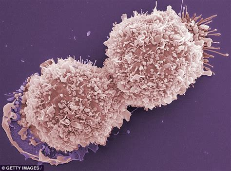 hot flushes in breast cancer breast cancer patients who fear the worst suffer more
