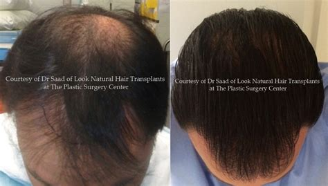 Hair Implants Nashville Ga 31639 Neograft Hair Transplant Results With Automated Fue Hair