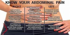 Abdominal Pain Chart  U2013 Kumpulannetizenheboh