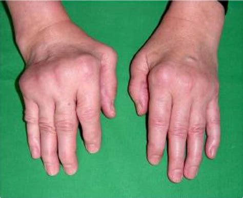 Rheumatoid Hand Surgery  Adelaide Plastic & Hand Surgery. Cribs To College Ocala Scottsdale Garage Door. Bachelors In Software Engineering. Microsoft Ssl Certificate Itko Lisa Download. Revenue Management Software Bls Tour Dates. Compliance Software Market How To Become R N. Server 2008 Terminal Services. Cheapest Web Hosting Plan Million Dollar Loan. Heating And Air Conditioning Installation